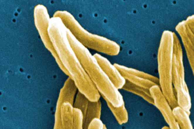 Nanopore technology may cut test for tuberculosis from days to hours