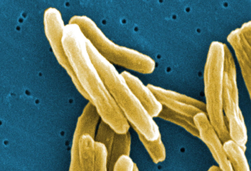 microscopic view of tuberculosis bacteria