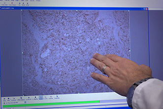 VIDEO: Can breast cancer be stopped by targeting the stem cells?
