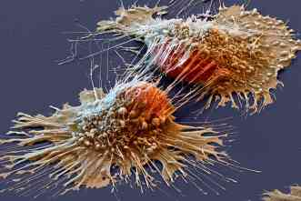 Nanocarriers will carry drugs directly to tumors, avoid healthy tissue