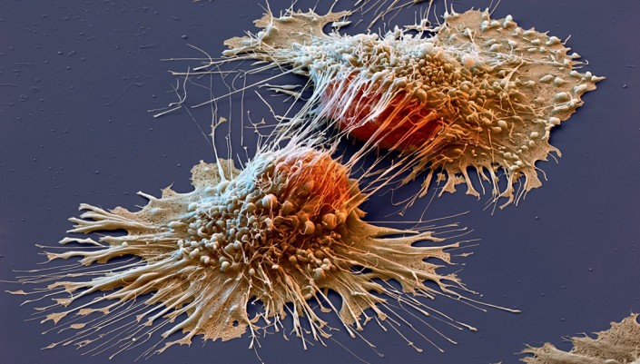 image of a cancer cell