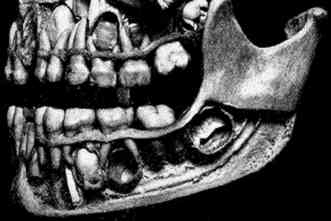 New study identifies limitations of human jaw to bite into hard foods