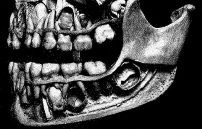 cutaway of human jaw