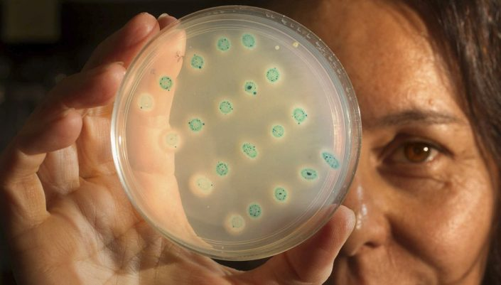 Scientists holds holding a Petri dish containing colonies of bacteria