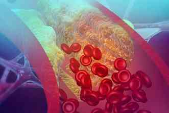 New microdevice could help detect blood clots in pediatric patients